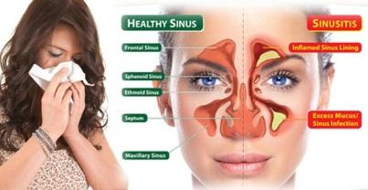 Cara Mengobati Sinusitis
